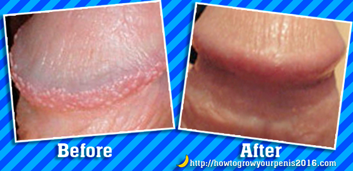 How to Get Rid of Pearly Penile Papules? Natural Removal Method | How To Grow Your Penis Blog